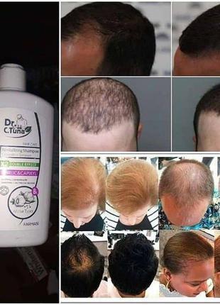 Шампунь от выпадения волос с экстрактом чеснока
