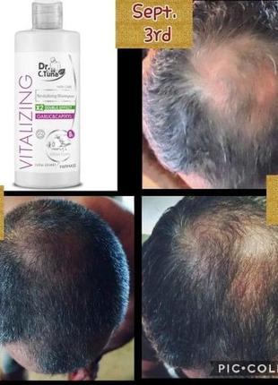 Шампунь восстанавливающий и от выпадения волос с экстрактом че...