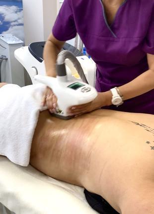 Вакуумно-роликовый массаж и прессотерапия