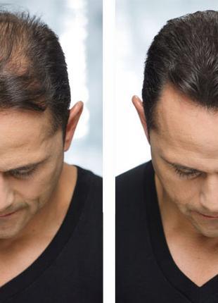 Кератиновый Загуститель для редких волос Toppik 27,5г USA