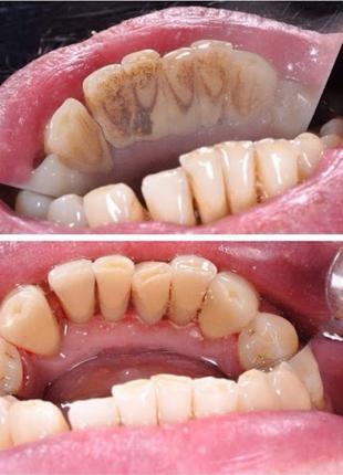 Професійна чистка зубів / чистка зубов