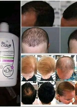 Шампунь против выпадения волос.