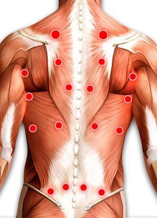 Массаж для снятия мышечных зажимов (триггерные точки)