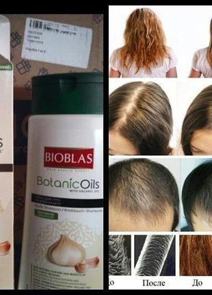 Шампунь против выпадения волос юнайс unice