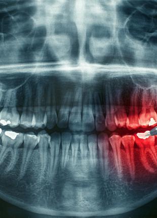 Швейцарская стоматология объявляет об АКЦИЯХ!!!