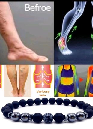 Магнитный ножной браслет от варикоза и лишнего веса