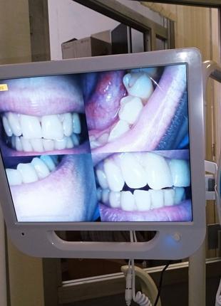 Стоматологічна інтраоральна камера з 17-дюймовим монітором