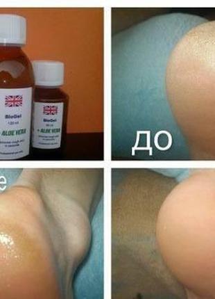 Биогель с алоэ вера / Bio gel aloe vera Derma Pharms Uk 60 мл