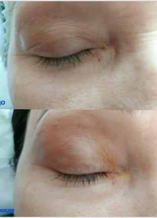 🔥скидка 30% 🔥маска от морщин для глаз и губ dermophisiologique...