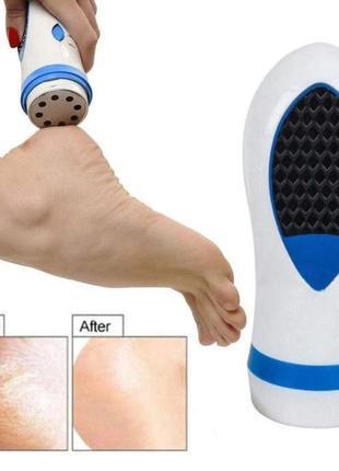 Универсальный прибор для ухода за ногами и стопами ног, педи с...