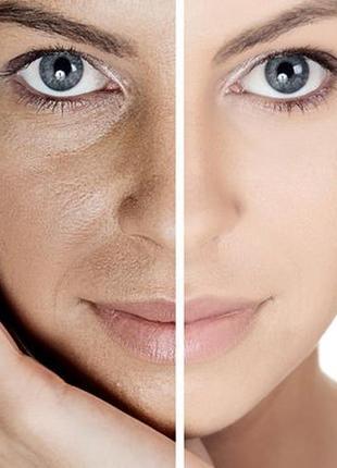 Тональный крем для лица noreva exfoliac лечебный пудра скрывае...