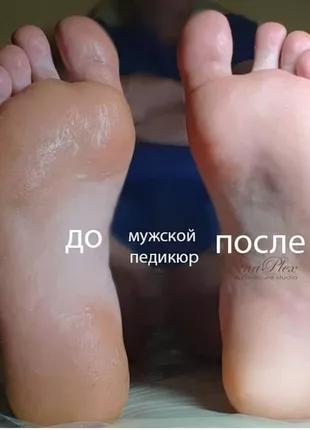 Подолог Николаев педикюр медицинский