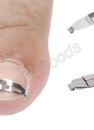 Фиксатор металлический (скоба) для коррекции вросших ногтей 1шт