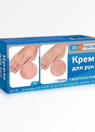 ДО и После Гидроактив крем д/сухой кожи рук 100мл