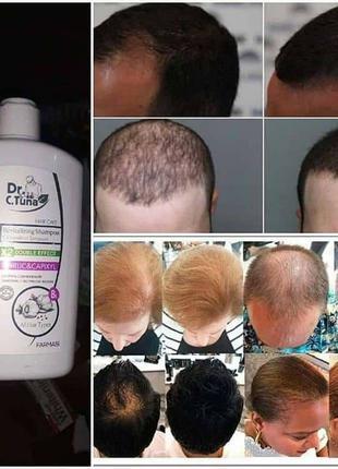 Шампунь чесночный от выпадения и для укрепления волос фармаси
